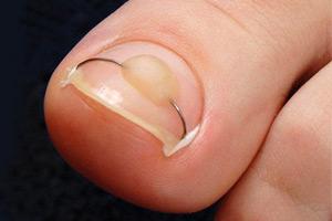 Как вылечить грибок ногтей на ногах дома