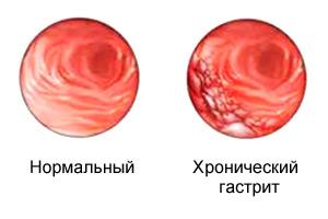 Как лечить хронический гастрит в стадии обострения