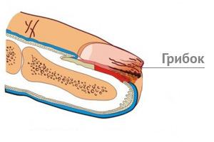 Эффективное лечение грибка на ногтях рук