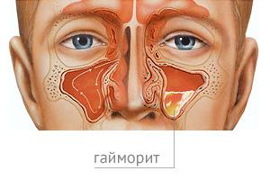 Лечение гайморита в Москве