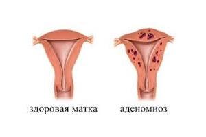 Что такое аденомиоз яичника и как его лечить